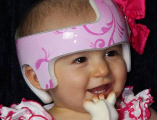 Cranial Helmets